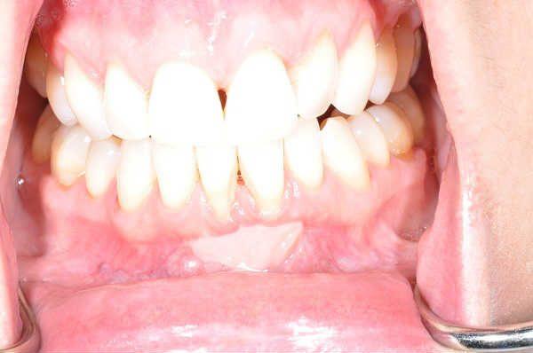 gum disease treatment Las Vegas, NV