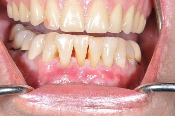 after gum recession treatment - Las Vegas, NV