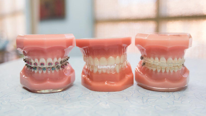 orthodontics - Las Vegas, NV