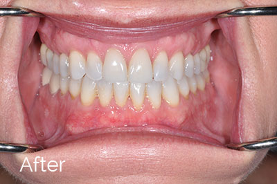after image of gum recession correction - Las Vegas, NV