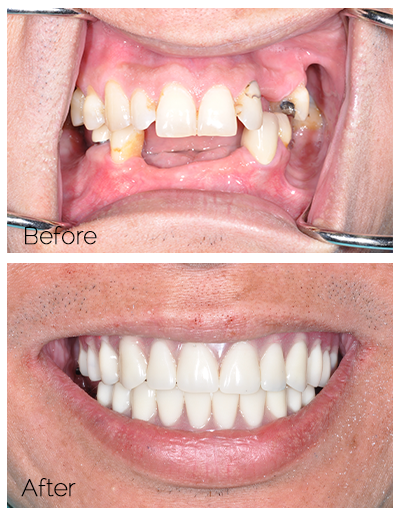 before and after dental implants - Las Vegas, NV