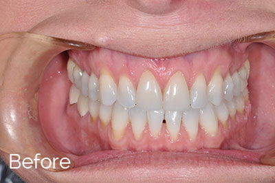 before image of gum recession correction - Las Vegas, NV