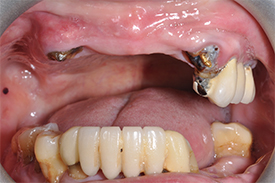 before dental implants - Las Vegas, NV