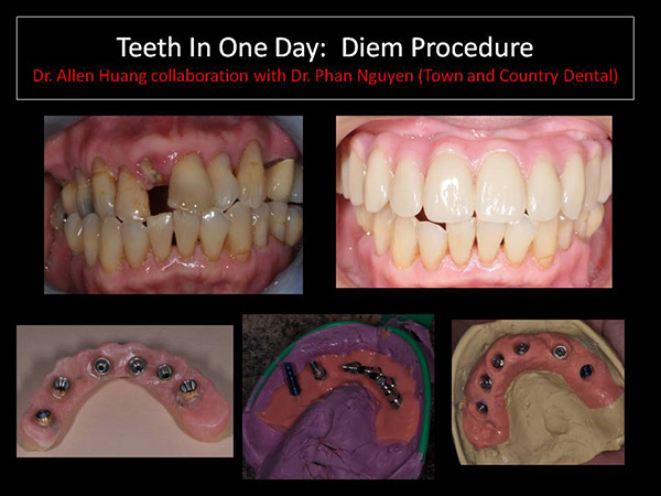 one day teeth reconstruction - Las Vegas, NV