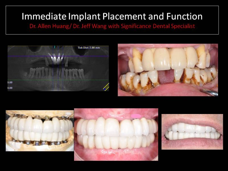 dental implants explained - Las Vegas, NV