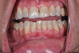 after gingival graft - Las Vegas, NV