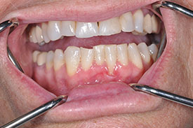 before gingival graft - Las Vegas, NV