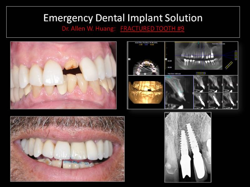 emergency implants - Las Vegas, NV