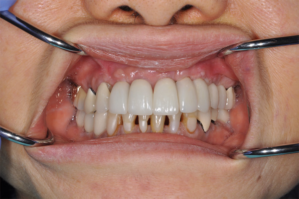after dental implants - Las Vegas, NV
