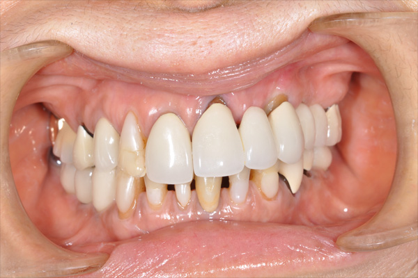 before dental implants - Las Vegas, NV