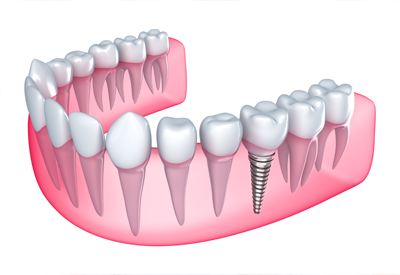 x-ray image of dental implant - Las Vegas, NV
