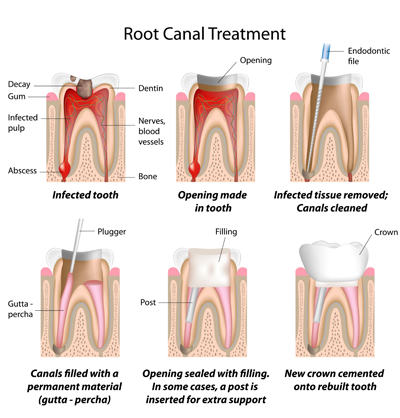 Diagram of root canal treatment - Las Vegas, NV