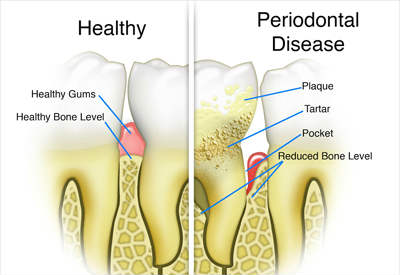 periodontal disease illustration - Las Vegas, NV