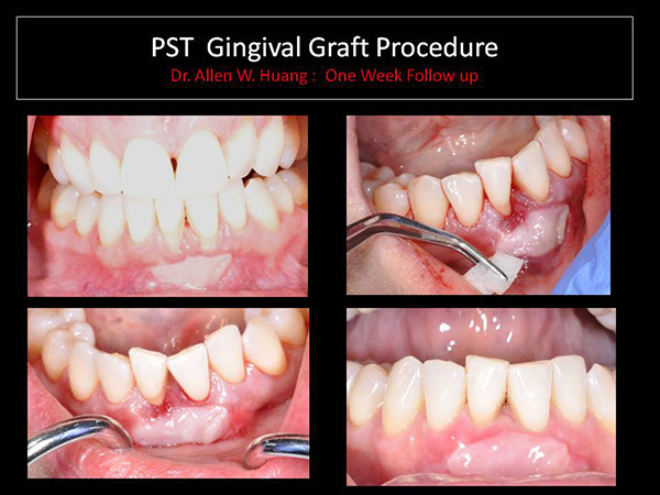 gingival graft - Las Vegas, NV