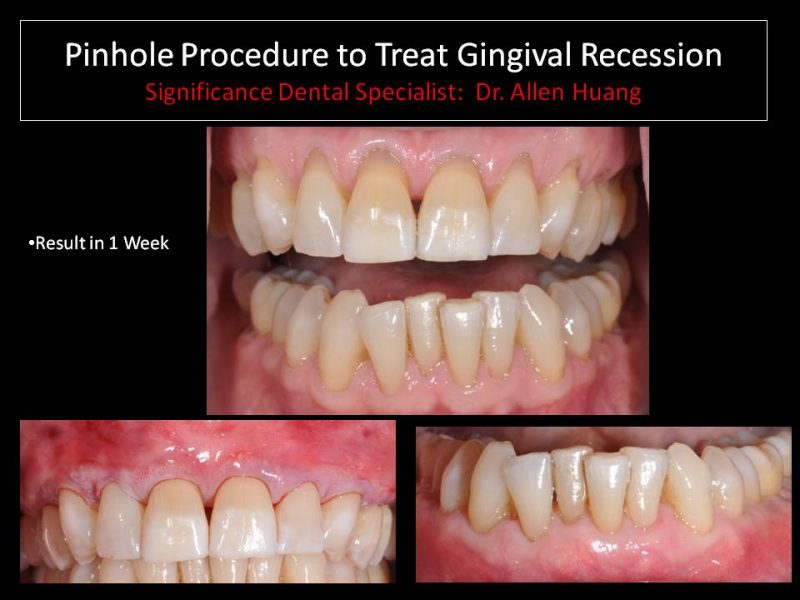 gingival recession - Las Vegas, NV