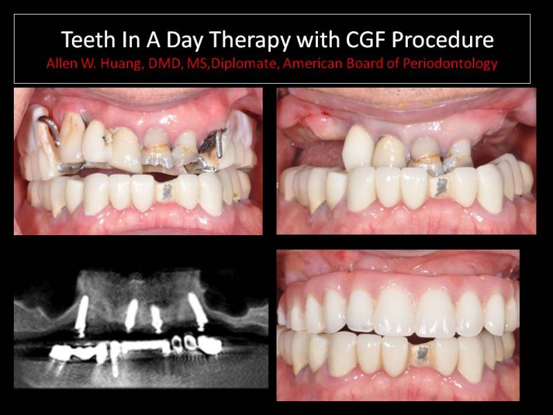 Teeth In A Day Case Study