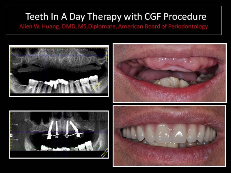 CGF procedure - Las Vegas, NV