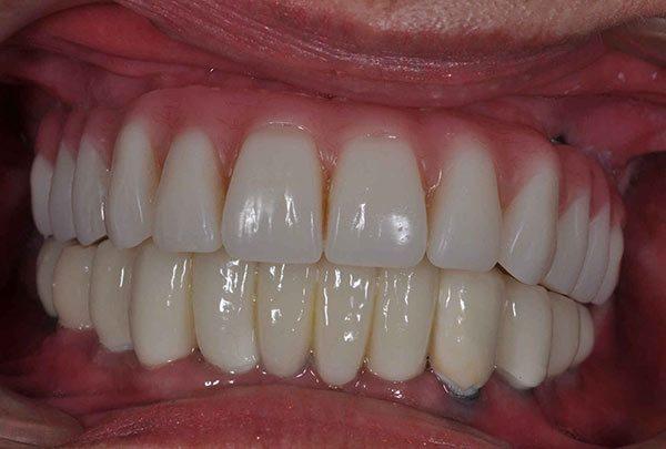 all-on-4 dental implants - Las Vegas, NV