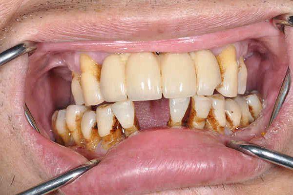before cosmetic dentistry - Las Vegas, NV