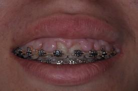 dental braces - Las Vegas, NV