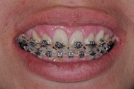 dental braces - Las Vegas, NV