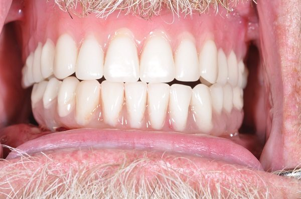 after cosmetic dentistry - Las Vegas, NV