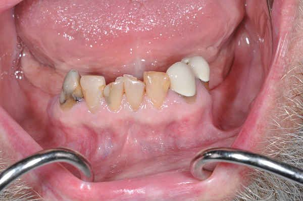before cosmetic dentistry - Las Vegas, NV