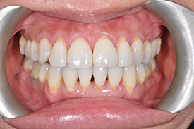 before gum graft - Las Vegas, NV