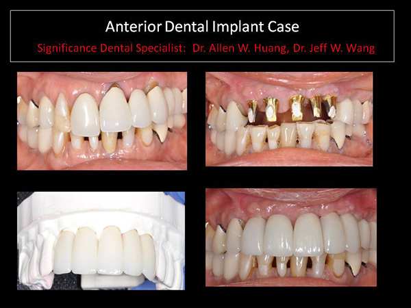 anterior dental implant - Las Vegas, NV