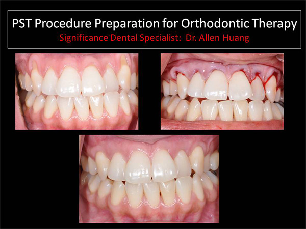 PST orthodintic procedure - Las Vegas, NV