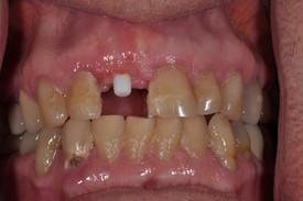 before dental implant - Las Vegas, NV