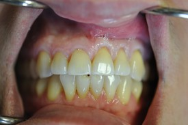 before gum recession treatment - Las Vegas, NV
