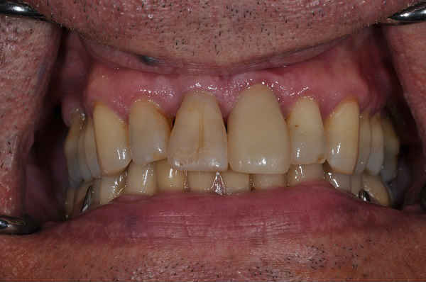 after dental implant - Las Vegas, NV